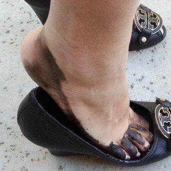 scarpe donna piedi macchiati