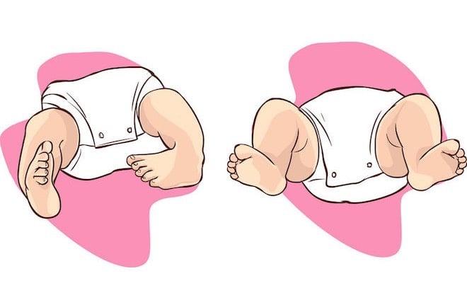 piede-equino-neonato