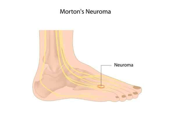 neuroma morton