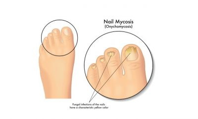 micosi unghie rimedi naturali