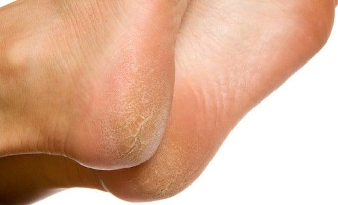 piedi screpolati