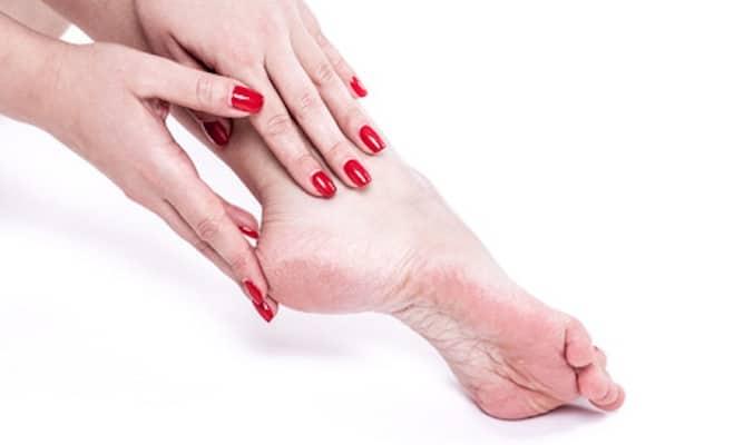 piedi secchi cause rimedi